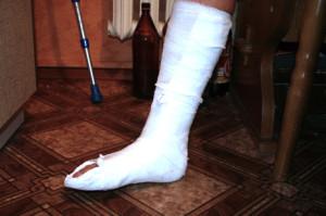 вор сломал ногу